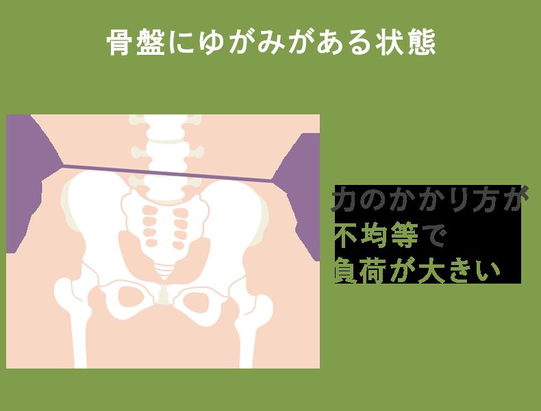 骨盤にゆがみがある状態